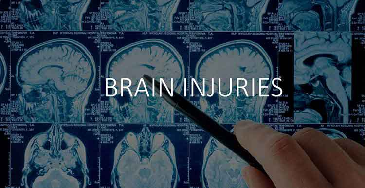 SF-brain-injury-lawyer-on-new-TBI-scan (1)